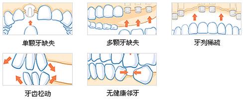 适应症 二,为什么要做种植牙   即刻种植:ct亲骨种植技术只需一次,就