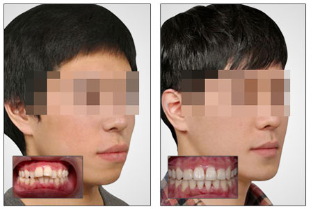 """龅牙矫正遵循的原理和过程    由于龅牙是多年形成的,要让它""""改斜归"""